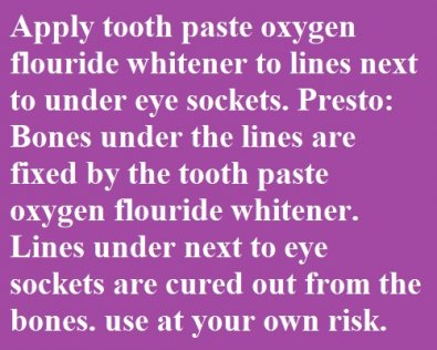 Apply tooth paste oxygen flouride whitener to lines next to under eye sockets